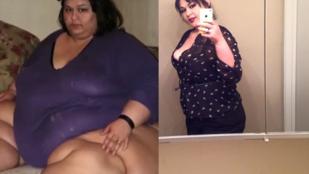 Ötödére fogyott az ötszáz kilós nő