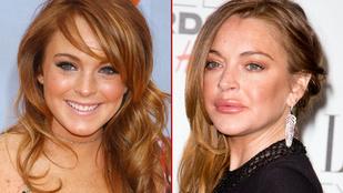 Van az úgy, hogy Lindsay Lohan túltolja a botoxot