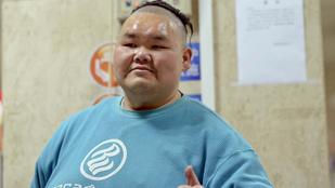 Ennyit fogyott Kína legkövérebb embere