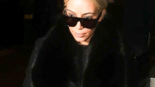 Kardashian szája egy kicsit feldagadt
