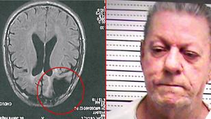 Kivégezték a férfit, akinek hiányzott az agya egy része