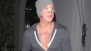 Mickey Rourke orrtapaszt villantott