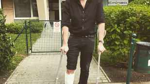 Fluor eltörte a lábát, legalábbis nagyon úgy néz ki