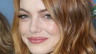 Valami egészen bizarr dolog történt Emma Stone arcával