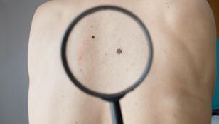 A bőrrák 5 szabad szemmel is jól látható tünete