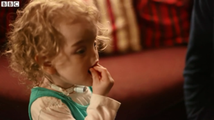 3D nyomtatóval kap orrot az orr nélkül született kislány