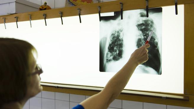 Negyedszerre sem sikerült beszerezni tbc-oltást
