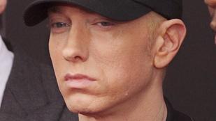 Mégis mi történt Eminem arcával?!