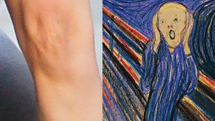 Ikertornyok: Katie Holmes térde és Edvard Munch: A sikoly