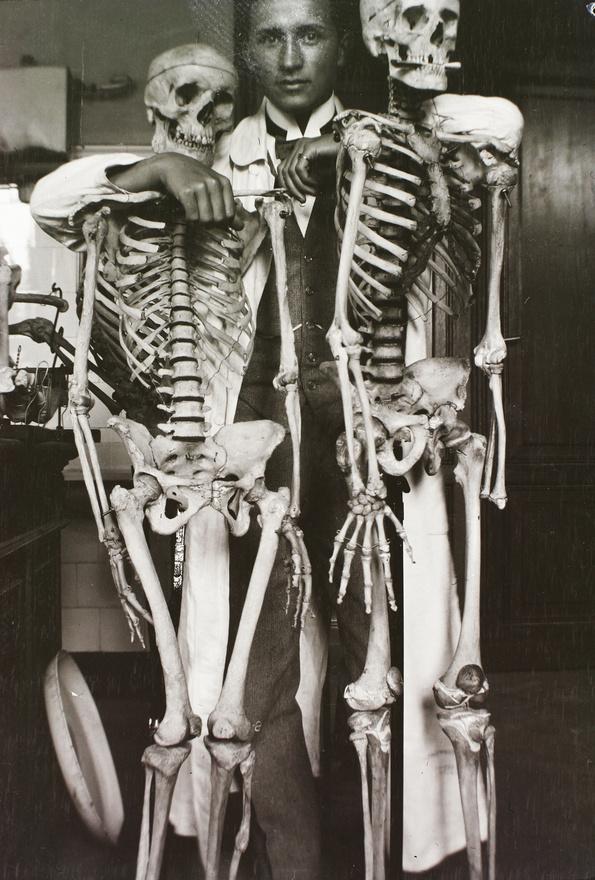 Talán ugyanannak az iskolának a szertárában járunk. A két csontváz természetesen valódi, ami még bizarrabbá teszi a képet.