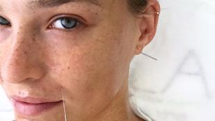 Bar Refaeli akupunktúrás tűkkel az arcában is jól néz ki