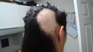 A foltos hajhullás mindig horror, de az időzítés így a legdurvább