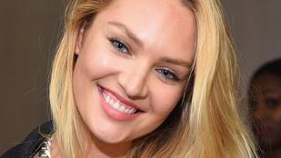 Óriásit esett Candice Swanepoel, de már túl van a dolgon