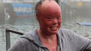 Netes szívatás miatt akart öngyilkos lenni a ritka bőrbetegségben szenvedő lány