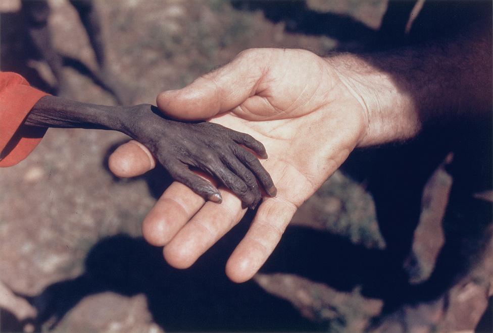 1981. Egy súlyosan alultáplált fiú keze egy katolikus szerzetes kezében az észak-ugandai Karamoja régióban.Az éhezés a mai napig viszatérő gond ezen az aszályos vidéken, ahol az aszály mellett társadalmi és politikai okokból is rendkívül súlyos volt a helyzet az 1970-es években. 1980-ban nem egészen egy év alatt a népesség közel 20 százaléka, a csecsemők körülbelül fele halt éhen.Az év fotója díjat Mike Wells felvétele nyerte el, amelyen egy éhező gyerek kezét látjuk.